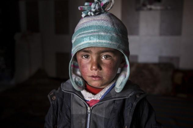 ferite_invisibili_siria