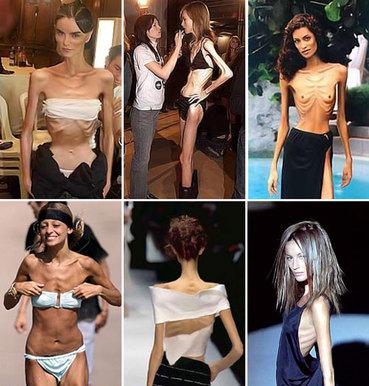 anorexic1[1].jpg
