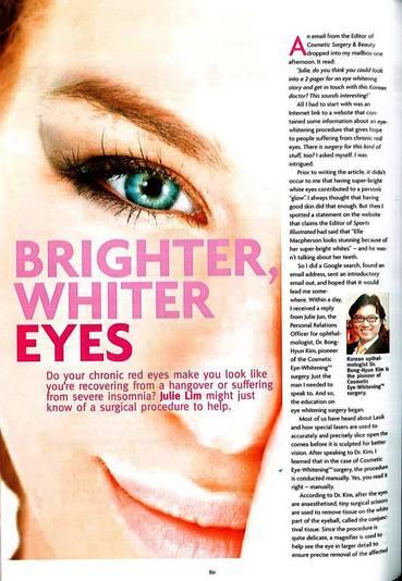 eye-whitening-1.jpg